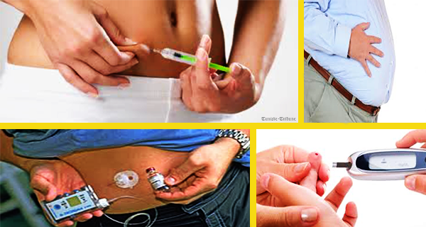 Diabète-quelles innovations dans le traitement-Et peut-on en guérir-600