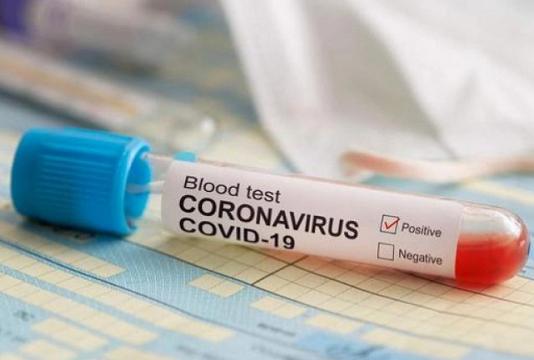 La flambée des nouveaux cas de contamination et de décès continue, la vaccination s'accélère